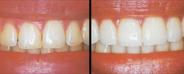 image with and without gum reshaping