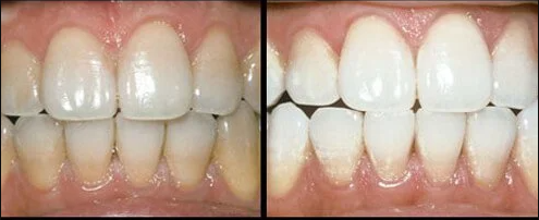 teeth with and without whitening treatment