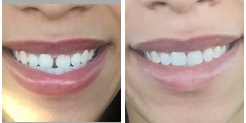 Smile Before & After 9