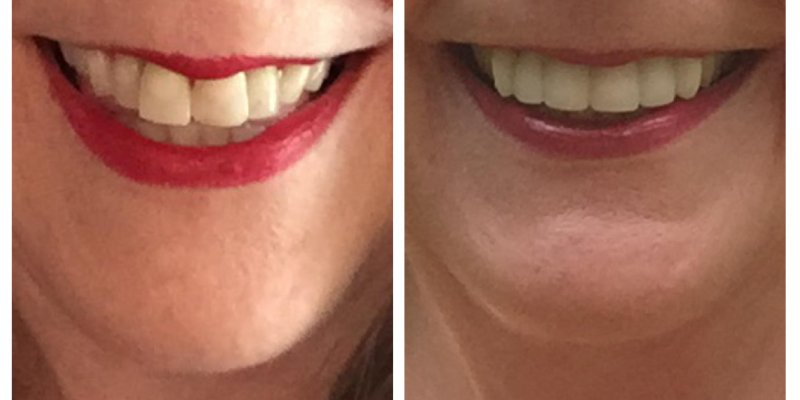 Smile Before & After 8